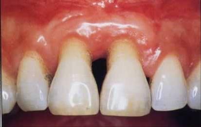 Zahnfleischrückgang: Was hilft gegen freiliegende Zahnhälse?