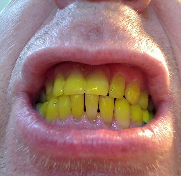 Verfärbungen: 4 Tipps für weißere Zähne ohne sie zu bleichen