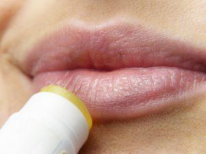 Herpes bekämpfen: So wirst du die Bläschen wieder los