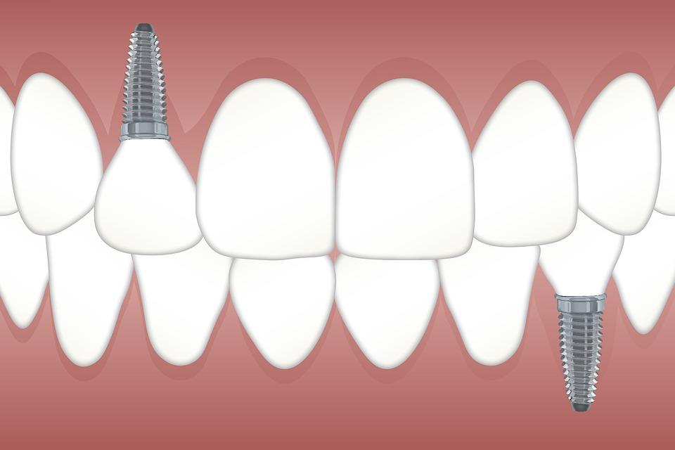 Zahnimplantat: Alles was du vorher wissen musst