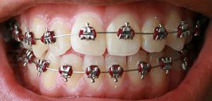 Was tun bei schiefen Zähnen?