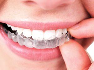 Mit unsichtbarer Zahnspange schiefe Zähne korrigieren?